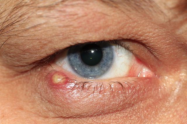 Как да се справим при ечемик на окото